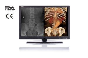 6MP LED Dicom Display System for X Ray Equipment CE FDA pictures & photos