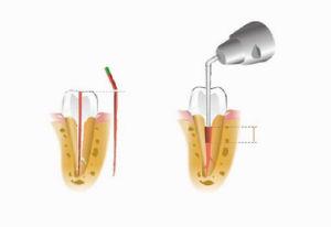 Gutta Percha Obturation Pen C-Fill α Pack Coxo New Dental Equipment pictures & photos