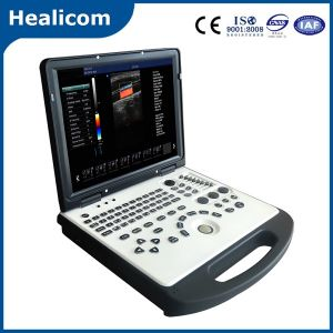 Ce Approved Laptop Portable Color Doppler Ultrasound Scanner (HUC-200) pictures & photos