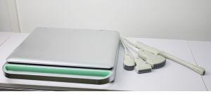 Hbw-9 Laptop B/W Ulrasound Scanner Portable Ultrasound Digital Ultrasound Diagnostic Machine pictures & photos