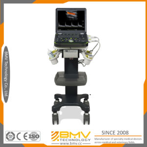 Diagnosis Equipment 3D Scanner Trolley Ultrasound Machine (bcu60 trolley) pictures & photos