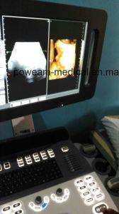 4D Mobile Color Doppler with 4 Probe Connectors (D50) pictures & photos