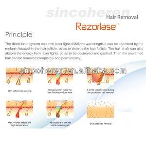 Alexandrite Laser Alma Laser Pain Free Diode Laser Hair Removal Price Depilator Salon Use Shr Hair Removal Soprano Laser Hair Removal pictures & photos