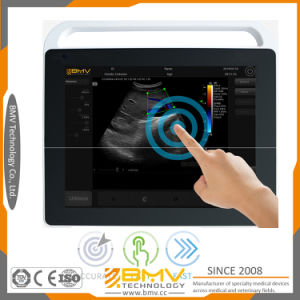 Ts60 Hospital Medical Portable Touch Screen Cheap Ultrasound Machine Price pictures & photos