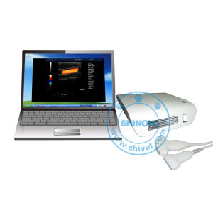 Color Doppler Ultrasound Box (BoxDop-I(V)) pictures & photos