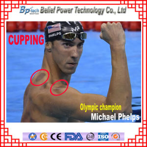 Chinese Traditional Medical Plastic Vacuum Therapy Cupping pictures & photos