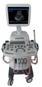 Trolley Ultrasound Diagnosis B Scanner MFC-Ss600 pictures & photos