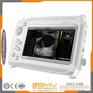 Human Uses Ultrasound Portable Medical Instrument (sonomaxx 300) pictures & photos