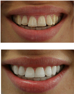 Professional Dual Barrel 35% HP Teeth Whitening Kit pictures & photos