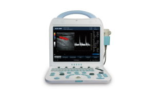 Portable Full Digital Color Doppler Ultrasound Scanner (DCU10PLUS) pictures & photos