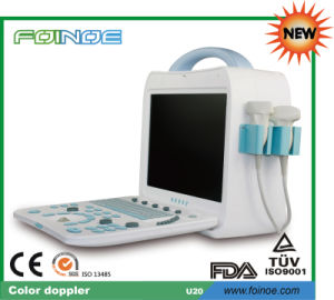 U20 New Model CE and FDA Approved Portable Doppler Ultrasound Machine pictures & photos