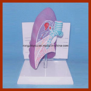 Educational Demonstration Disease Lung Anatomical Model pictures & photos