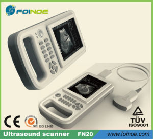 Fn20 Handheld Ultrasonic Diagnostic Instrument pictures & photos