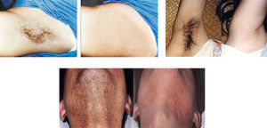 Opt+Shr+Dpl for Fast Hair Removal System pictures & photos