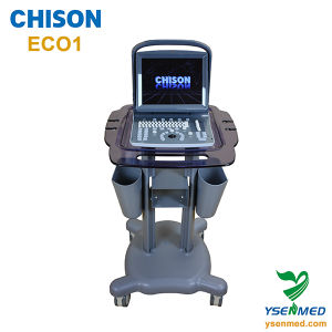 Hospital Medical Chison Eco1 China Portable Good Quality Ultrasound Machine pictures & photos