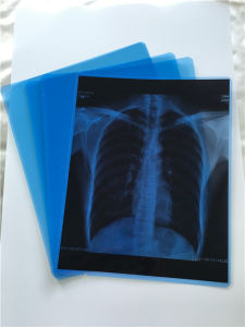 Inkjet Blue Medical Film Dry X-ray Medical Film pictures & photos