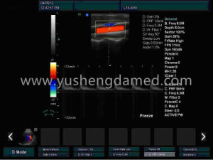 4D Trolley Color Doppler Ultrasound Equipment System (YSD780) pictures & photos