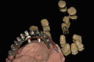 Full Arch Cemented Metal Ceramic Implant Bridge pictures & photos