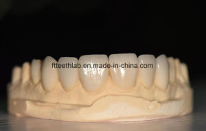 No Preparation Ultrathin Veneers Made in China Dental Lab pictures & photos