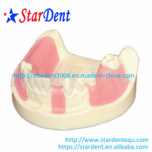 Dental Teeth Implant Practice Model pictures & photos