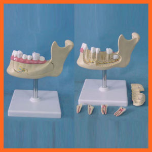 Simulation Lower Jaw of Teeth Model