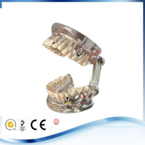 Dental Teaching Study Adult Standard Typodont Demonstration Teeth Model pictures & photos