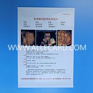 Medical Laser Printing Pet Film pictures & photos