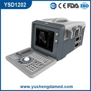 Ce Medical Hospital Equipment Bladder Convex Portable Digital Ultrasound Scanner pictures & photos
