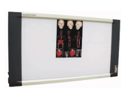High Quality Full Digital LED X-ray Film Viewer pictures & photos