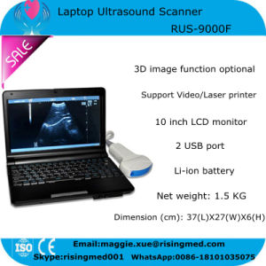 Hot Sale 10 Inch Laptop Ultrasound Scanner Rus-9000f with 3.5MHz Convex Probe Battery Optional Video Thermal Recorder CE ISO- Maggie pictures & photos