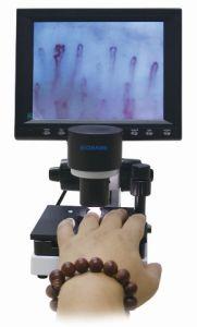 Microcirculation Microscope 8′ Screen pictures & photos