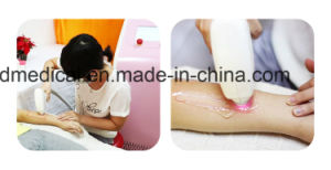 Super Safe Non-Invasive 808nm Diode Laser Hair Removal Salon Beauty Device with Good Price pictures & photos