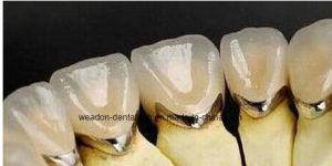 High Noble Crown with Pfm From Chinese Dental pictures & photos