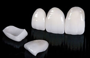 Dental All Ceramic Crown From China Dental Laboratory pictures & photos