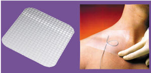 High-Permeable Grid Coating Wound Dressing with Ce and ISO pictures & photos
