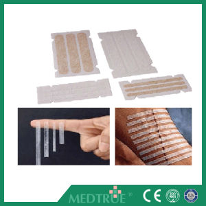 Ce/ISO Approved Medical Wound Closure Strip (MT59415001) pictures & photos