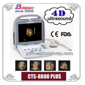 4D Portable Ultrasound Scanner with Thi, Pwd, Compound Imaging, etc pictures & photos