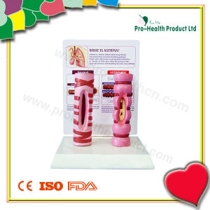 Education Medical Asthma Anatomical Model pictures & photos
