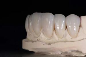 Denture Porcelain Bonded to Cocr Metal Crown pictures & photos