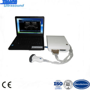 Win 7/Win XP Based Portable Ultrasound Machine for Medical Use pictures & photos