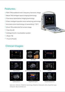 Digital Portable Ultrasonic Diagnostic 3D 4D Color Doppler Ultrasound Scanner pictures & photos