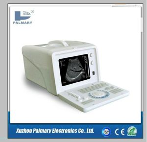 Pregnancy Scanner Ultrasound and Ultrasound Machine