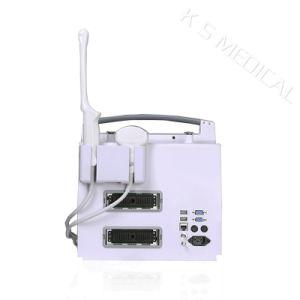 All Digital Color Doppler Ultrasound Scanner pictures & photos