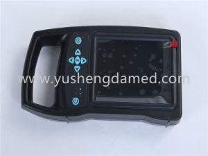 Small Wristscan Ultrasonic Diagnosis System Ultrasound Scanner pictures & photos