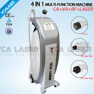 RF Vacuum Cavitation Beauty Equipment (VS100C) pictures & photos