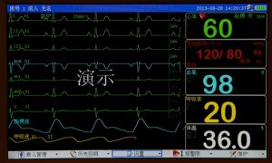 "12.1"" TFT Parameter Patient Monitor pictures & photos"