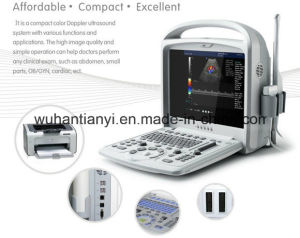 Hospital Medical Equipment Portable Color Doppler pictures & photos