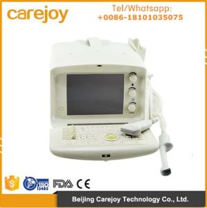 Carejoy Ce/ISO Approved 10 Inch Portable Ultrasound Scanner with 3.5 MHz Convex Probe Rus-6000A-Maggie pictures & photos