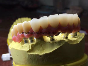 Full Arch Zirconium Implant Bridge From China Dental Lab pictures & photos