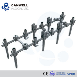 Canwell Spine Pedicle Screw Cantsp Titanium Spine Implant pictures & photos